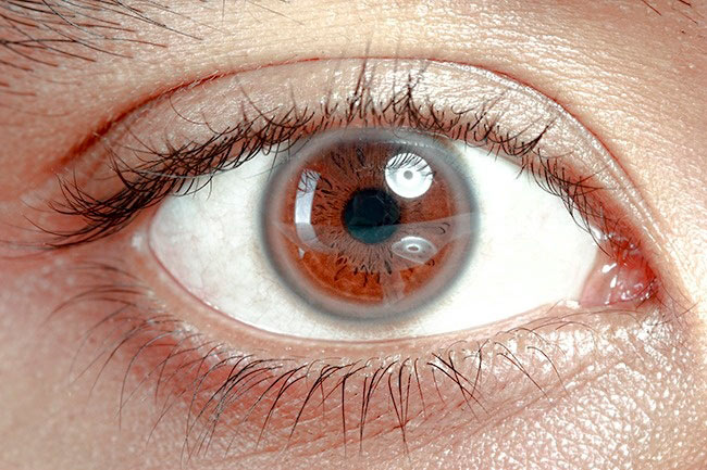 Белое кольцо вокруг радужки глаза