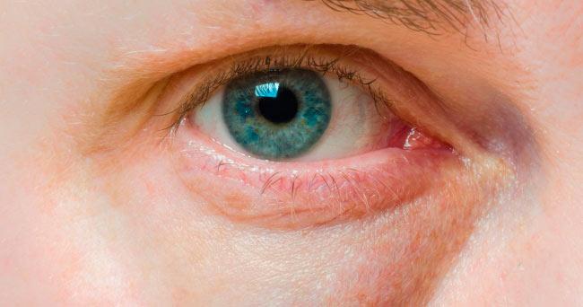 Опухшие и красные глаза
