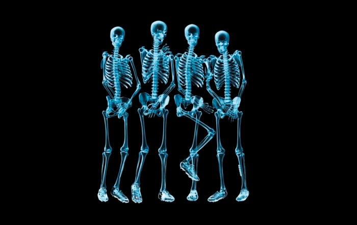 10 увлекательных историй изобретения вещей Рентгеновские лучи