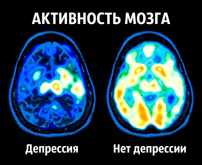 becomt happy 1 - Советы нейробиолога как стать счастливым раз и навсегда