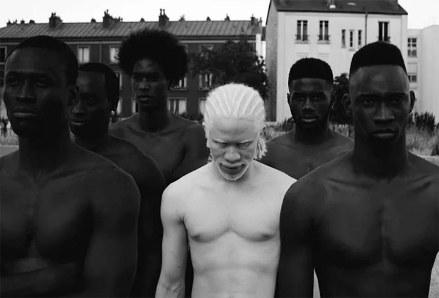 Люди-альбиносы people with albinism