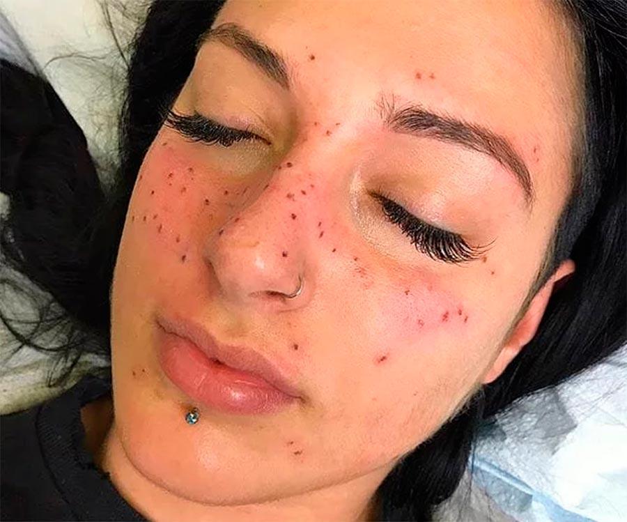 астровеснушки astro freckles
