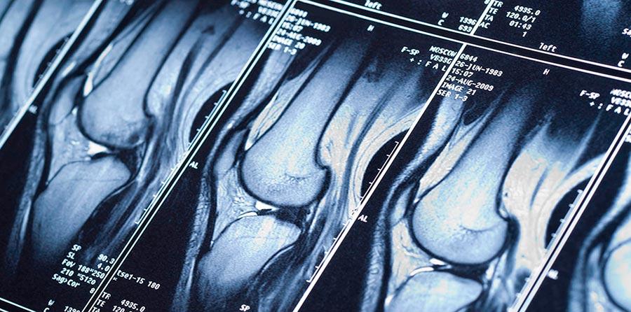Новая технология позволит пройти МРТ за несколько секунд