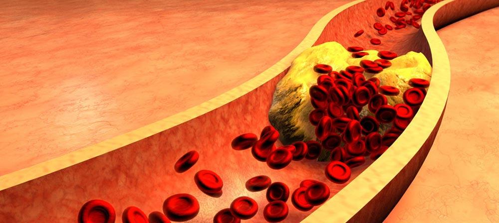 проблемы с артериями