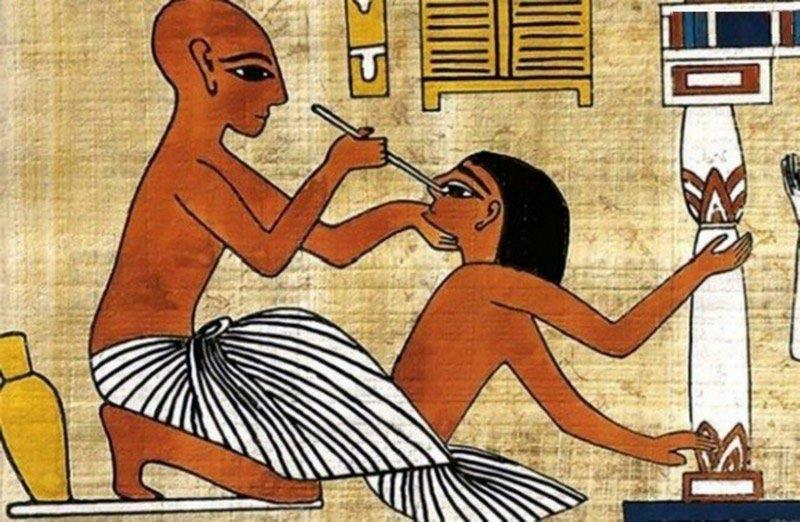 факты о Древнем Египте медицина