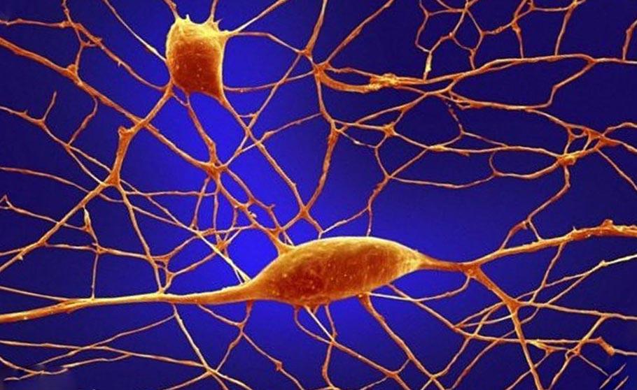 органы под микроскопом Нейроны Пуркинье