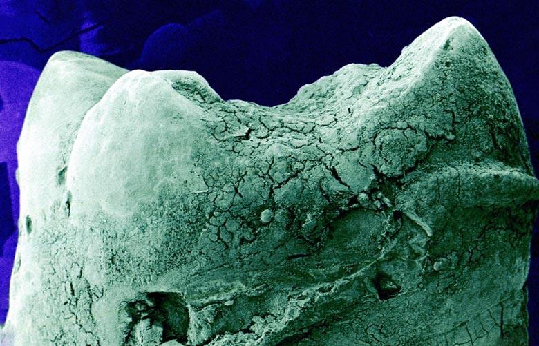 органы под микроскопом зуб