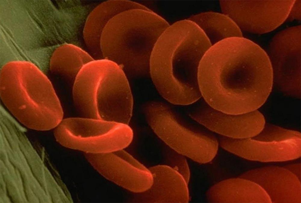 органы под микроскопом кровь